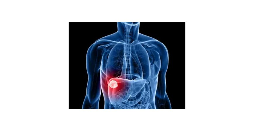 El cuidado de nuestro hígado. Saludable por dentro y por fuera